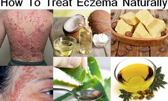 How To Treat Eczema Naturally