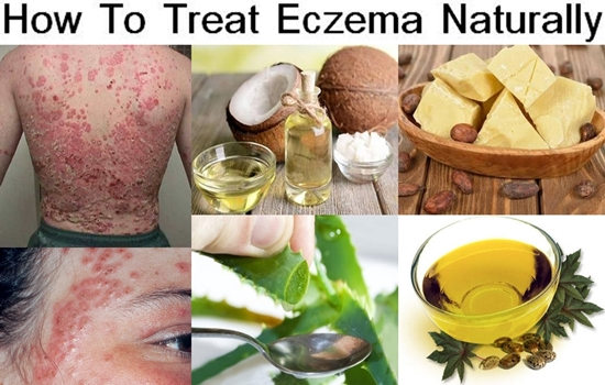 Photo of How To Treat Eczema Naturally