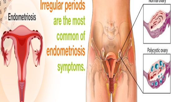 Periods Are Irregular, This Health Condition Could Be The Cause