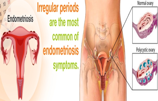 Photo of If Your Periods Are Irregular, This Health Condition Could Be The Cause