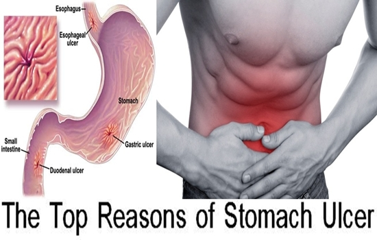 Photo of The Top 6 Reasons of Stomach Ulcer
