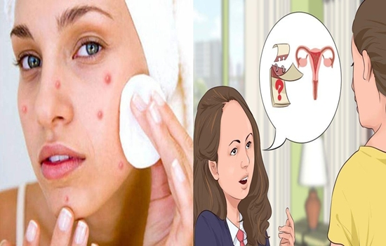 Photo of 4 Ways to get rid of pimples that appear during your period