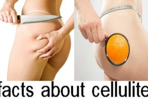 Do you know these facts about cellulite?