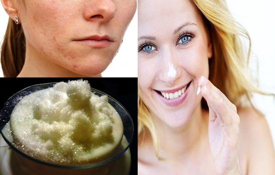 benefits to using Salicylic Acid