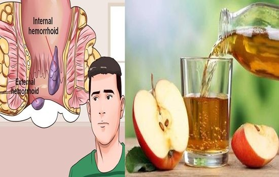 Photo of Hemorrhoids 24 Hours Natural Cure