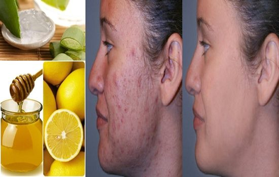 Photo of Home Remedies To Get Rid Of Burn Marks and Acne Scars