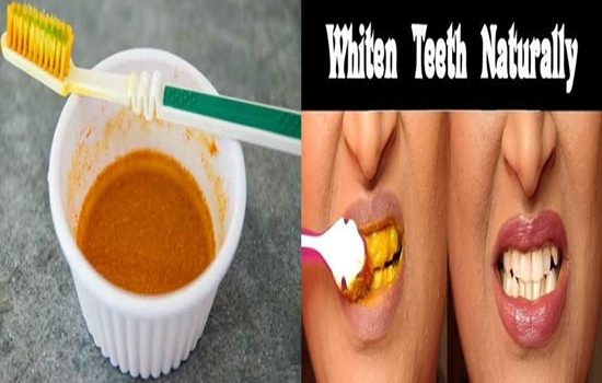 Whiten Your Teeth In Under 30 Minutes With This Natural Remedy