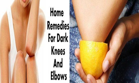 Home Remedies To Lighten Dark Elbows And Knees