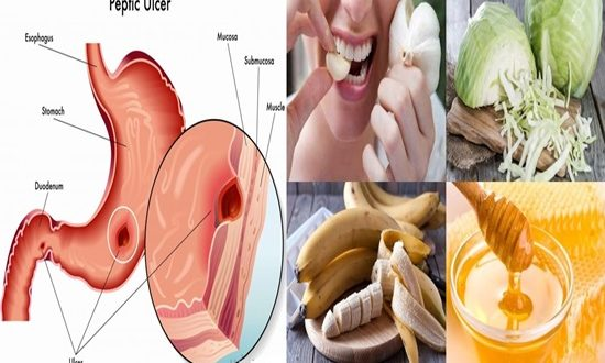Best Foods to Heal Stomach Ulcers Naturally