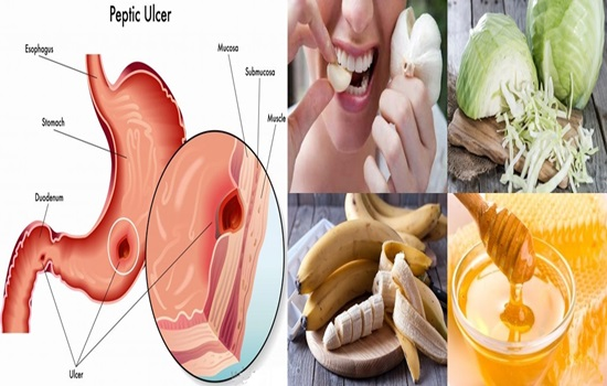 Photo of Best Foods to Heal Stomach Ulcers Naturally