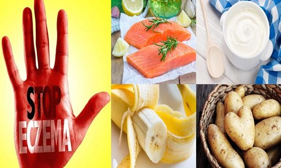 Foods To Eat To Reduce Symptoms Of Eczema.