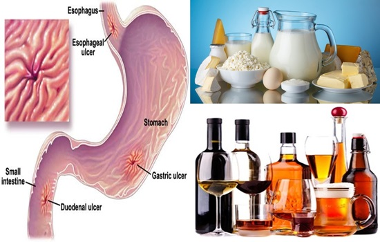 Photo of List of Foods to Avoid If You Have Stomach Ulcers.